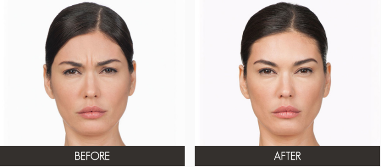 Anti-Wrinkle Botox Injections | Plastic Surgery | New Haven | Westport