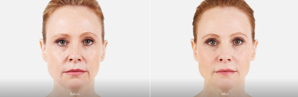 Anti-Aging Dermal Fillers | Plastic Surgery | New Haven | Westport