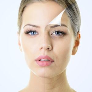 Chemical Peels | Plastic Surgery | New Haven | Westport CT