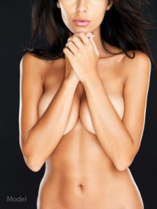 Breast Augmentation Plastic Surgery Before and After Photos | New Haven