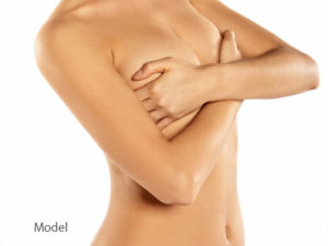 Preparing for Breast Lift Surgery (Mastopexy) | New Haven | Westport